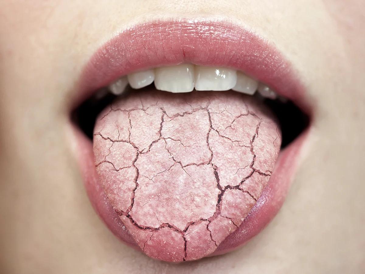 Сухость во рту у ребенка причины - здоровыйжелудок