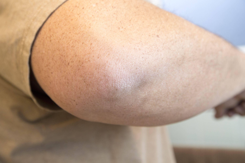Шершавая кожа у ребенка: причины и рекомендации
