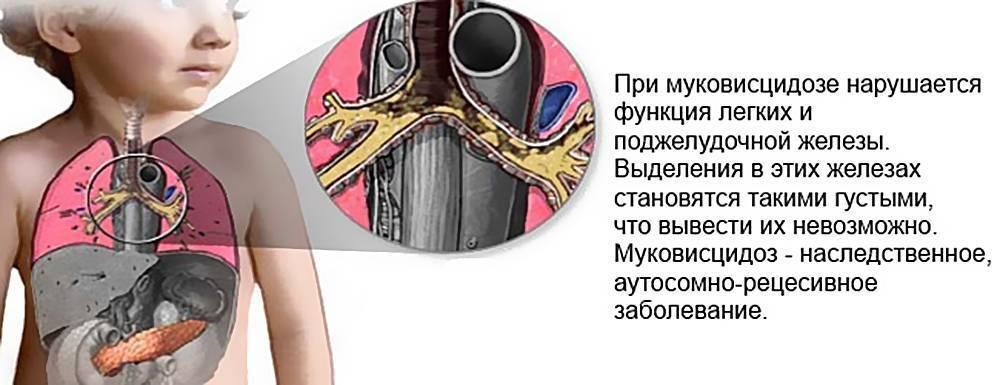 Муковисцидоз у детей: это что за болезнь, симптомы, лечение pulmono.ru муковисцидоз у детей: это что за болезнь, симптомы, лечение