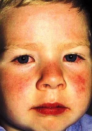 Болезнь кавасаки у детей: опасен ли этот синдром и как его пролечить?