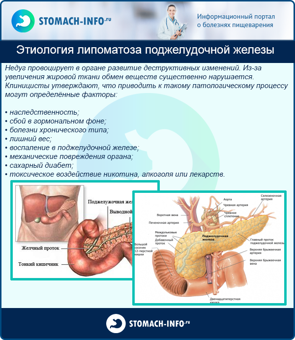 Что такое реактивные изменения поджелудочной железы