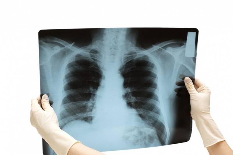 Вреден ли рентген ребенку