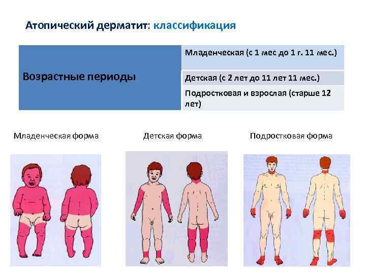 Атопический дерматит у ребенка: фото, лечение, причины, симптомы, препараты