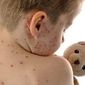 Вирусный дерматит у детей фото симптомы