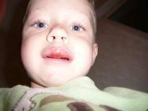 Какое лечение необходимо, если разбили губу