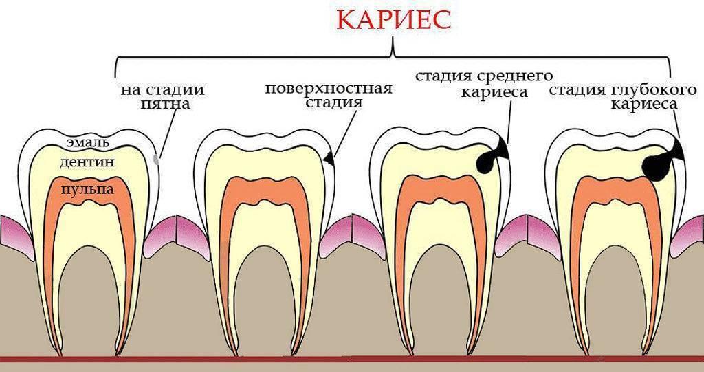 Методы лечения пульпита у детей — зубы