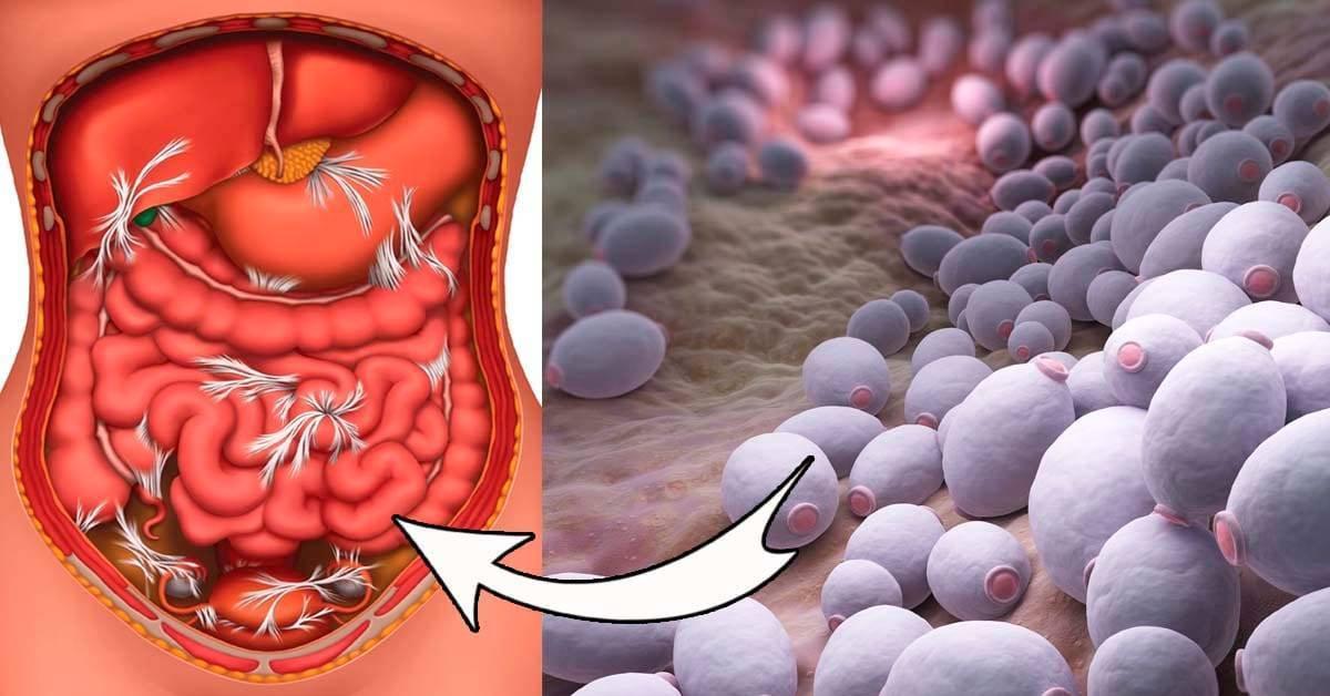 Кандидоз у детей в кишечнике, во рту, на коже и половых органах - почему возникает, проявления и чем лечить