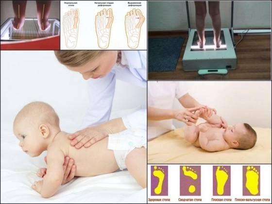 Массаж при вальгусной деформации стопы у детей - stopvalgus