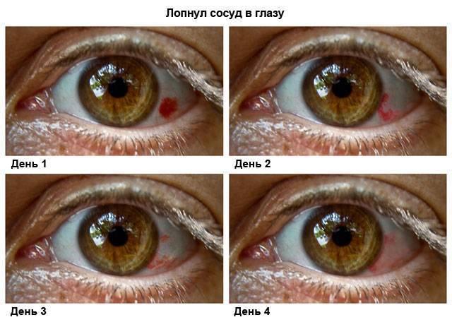 Лопнул сосуд в глазу: что делать, причины, лечение каплями, сопутствующие симптомы (покраснение, боль), фото полопавших капилляров