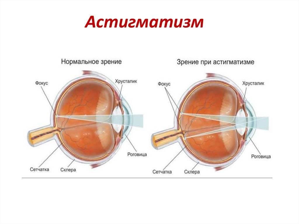 Гиперметропический астигматизм у детей: симптомы, лечение oculistic.ru гиперметропический астигматизм у детей: симптомы, лечение