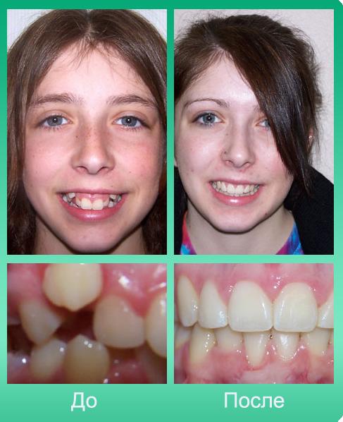 Со скольки и до скольки лет можно ставить брекеты на зубы