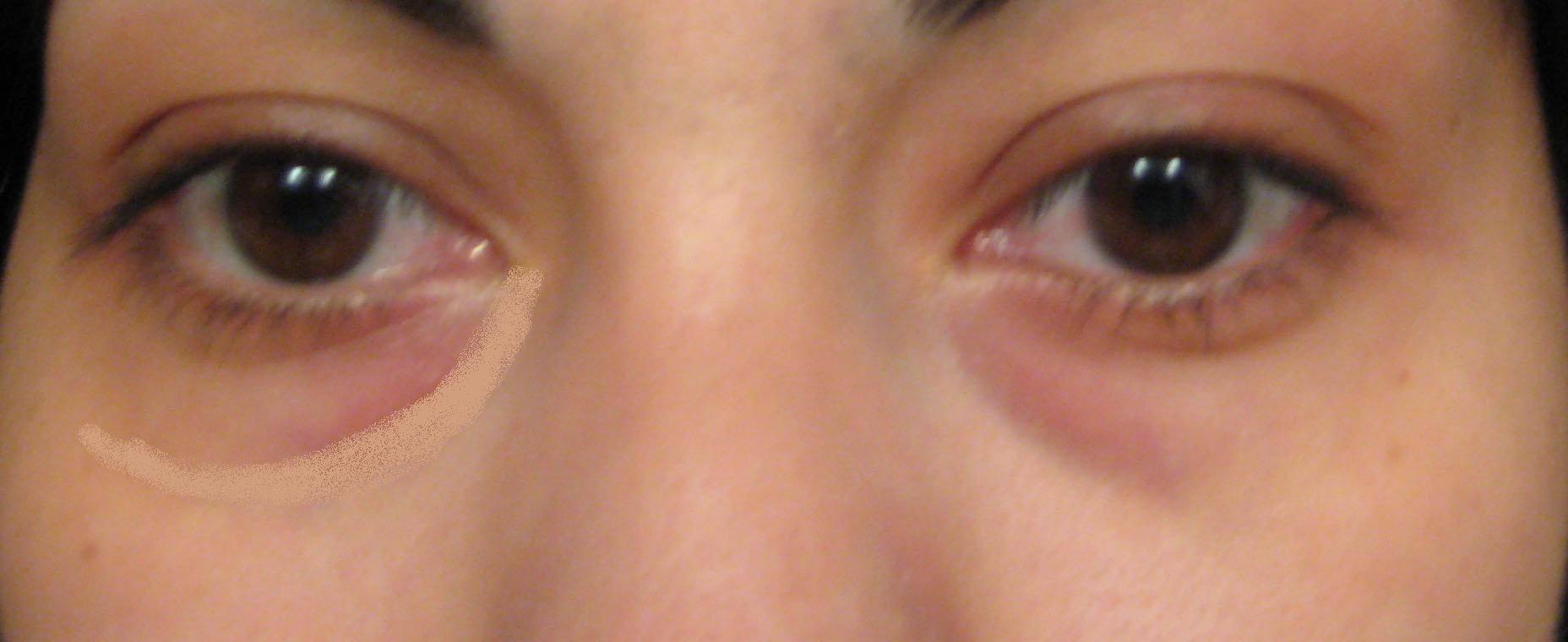 Синяки под глазами у ребенка. причины синяков под глазами. как устранить?