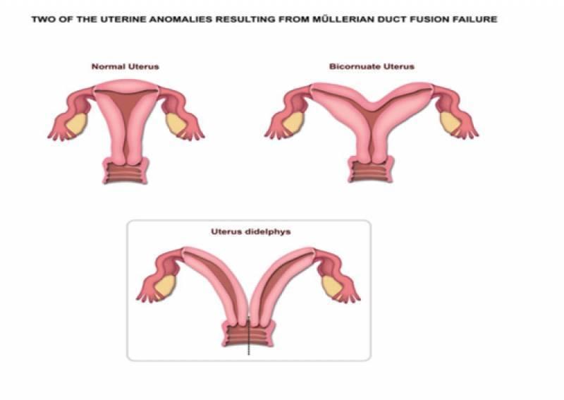 Беременность и роды при опущении шейки матки: чем опасно, что делать