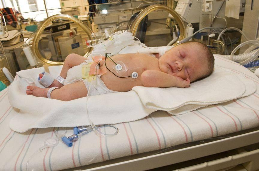 Некротизирующий энтероколит у новорожденных: причины, симптомы, диагностика и лечение