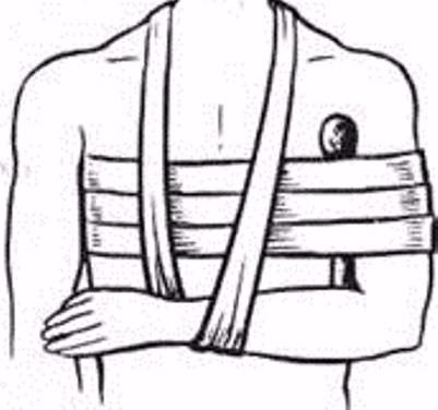 Перелом ключицы со смещением – лечение, период восстановления после операции