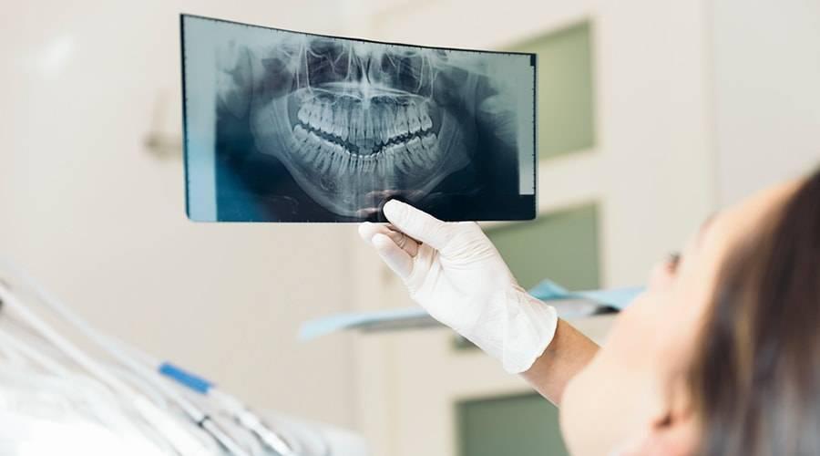 Рентген зуба на ранних сроках беременности до задержки