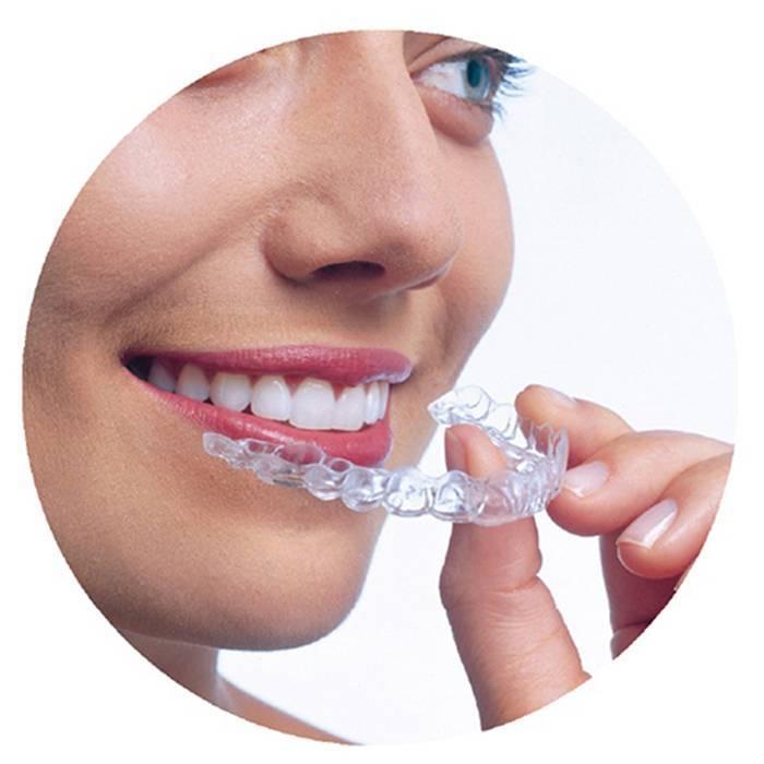 Что нужно знать о пластинках для выравнивания зубов