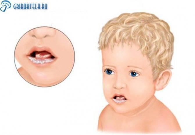 Молочница во рту у грудничка ? и ребенка от года: лечение и симптомы с фото