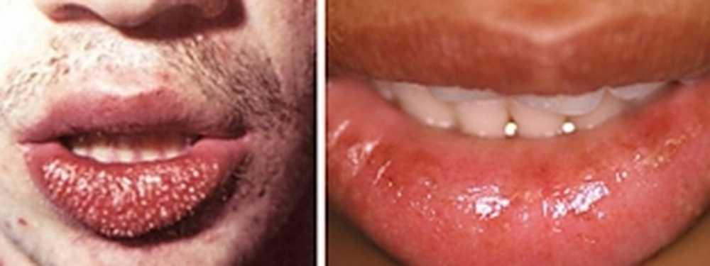 Лечение стоматита на губе у ребенка