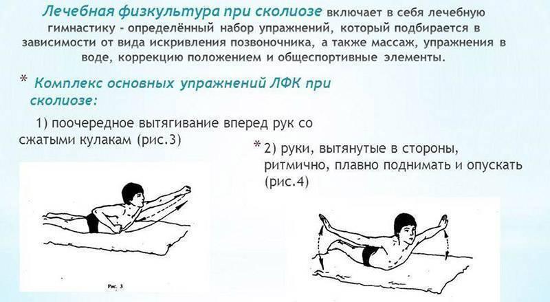 Лечебная физкультура (лфк) при нарушениях осанки у детей