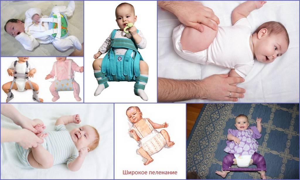 Признаки дисплазии тазобедренных суставов у детей в год