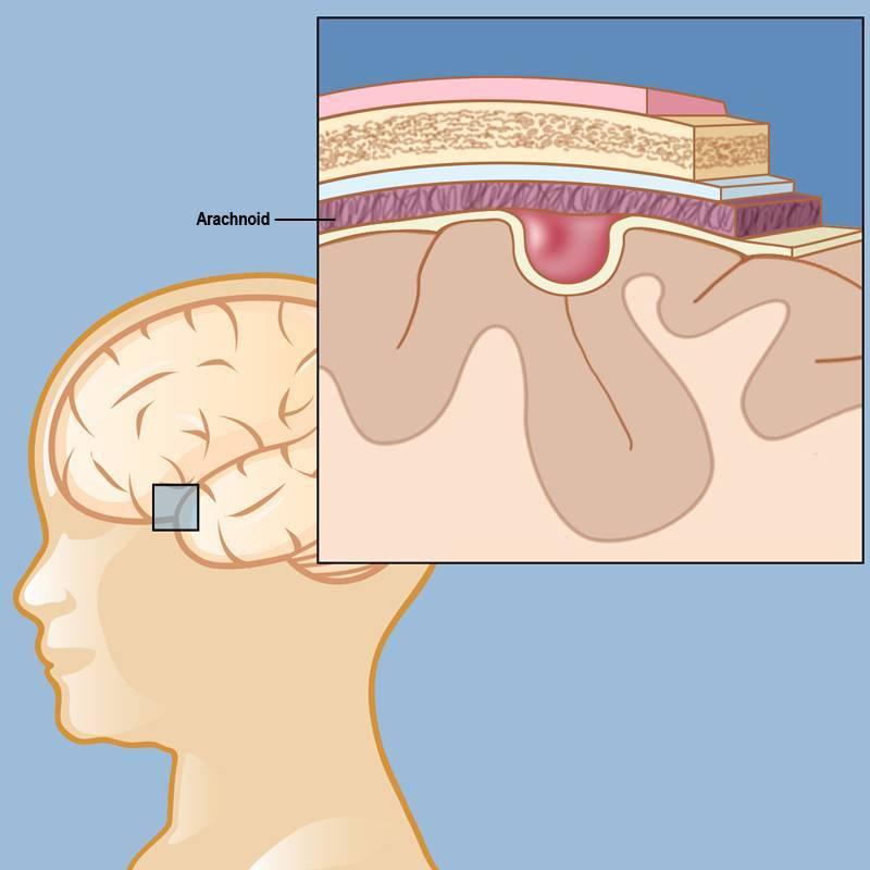 Псевдокиста в голове у новорожденного - причины возникновения псевдокисты головного мозга у младенца