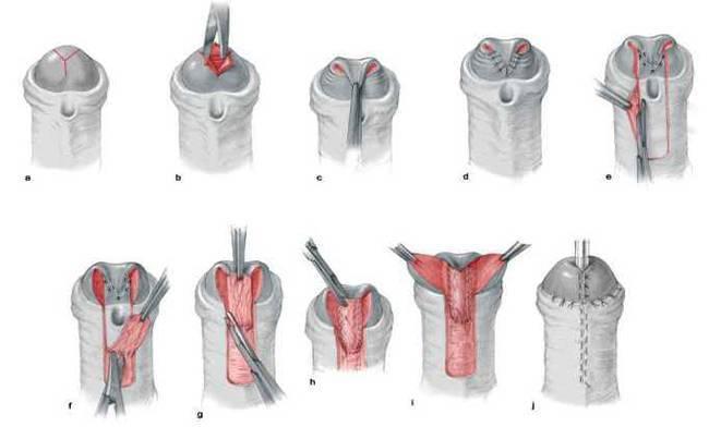 Гипоспадия – что это? гипоспадия без гипоспадии у ребенка, головчатая, стволовая, мошоночная, венечная гипоспадия у детей – операция