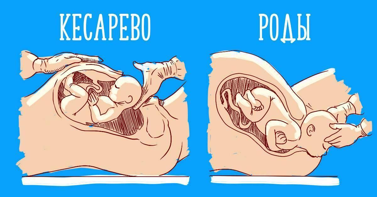 Роды до срока. преждевременные роды