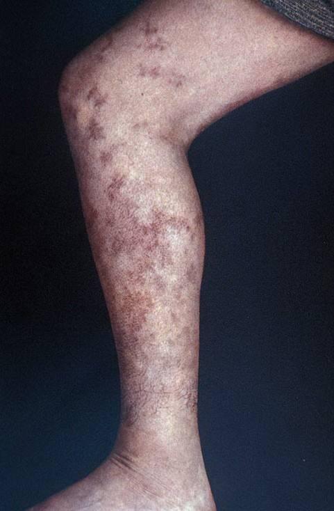 Питание при геморрагическом васкулите