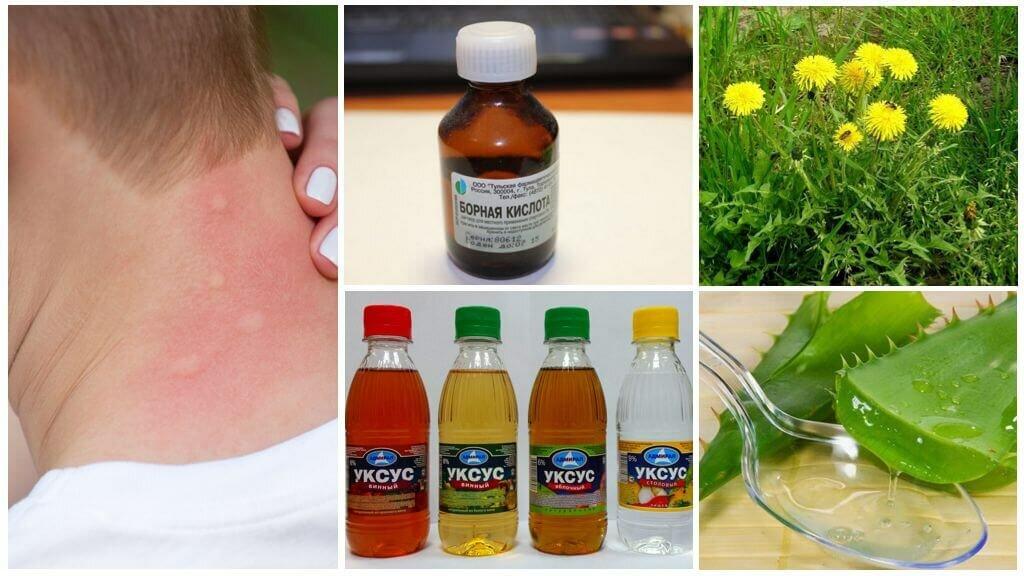 Зуд кожи при аллергии: как снять, таблетки, мази, крема, лечение, фото, симптомы, как убрать