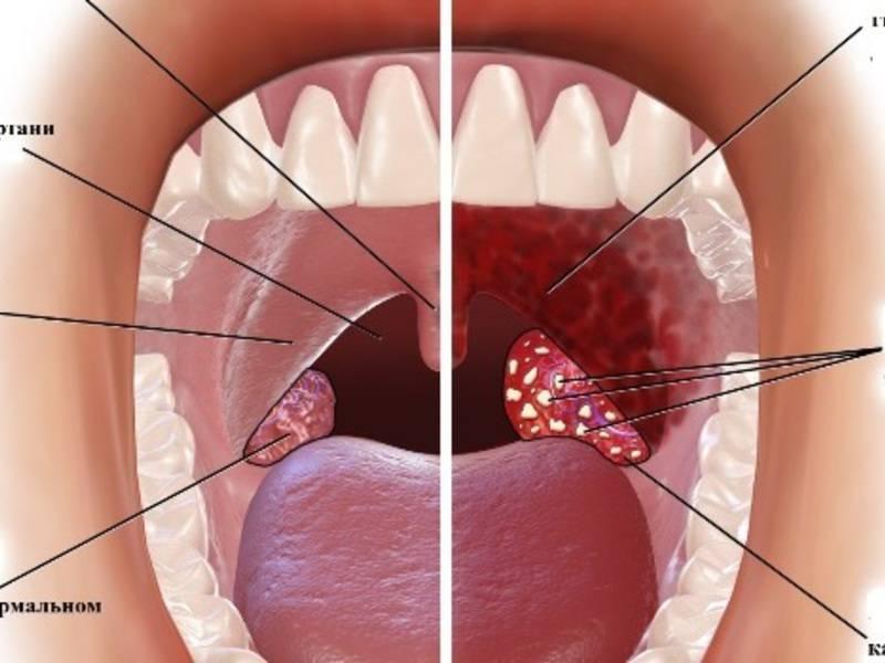Вирусный стоматит на горле у ребенка