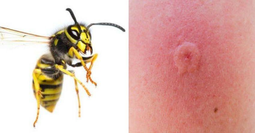 Что делать если укусила пчела или оса и как снять опухоль от пчелиного укуса