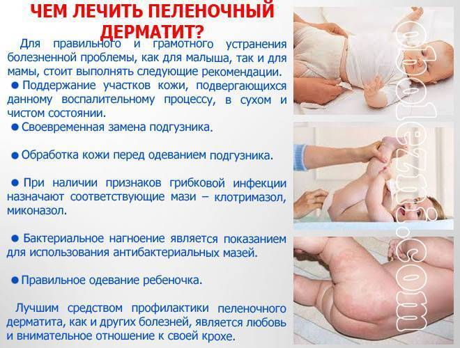 Все об опрелостях у новорожденных малышей: причины появления, эффективные методы профилактики и лечения