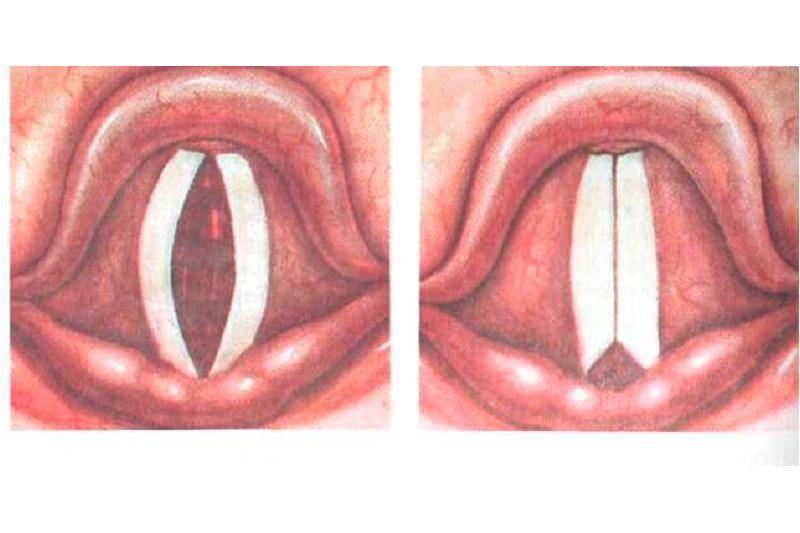 Отёк гортани у ребёнка лечение - правильное лечение