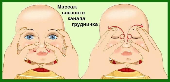 Сильно гноится глаз у новорожденного - всё о грудничках