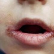 Заеды в уголках рта у ребенка (ангулит) – причины, лечение, мазь от заед