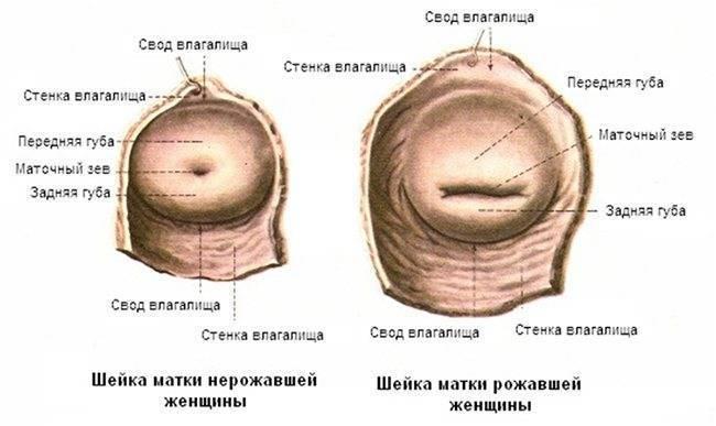 Матка при беременности на ранних сроках