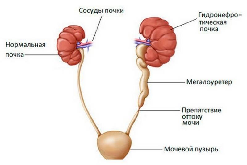 Пиелоэктазия - причины, симптомы, лечение у взрослых и детей