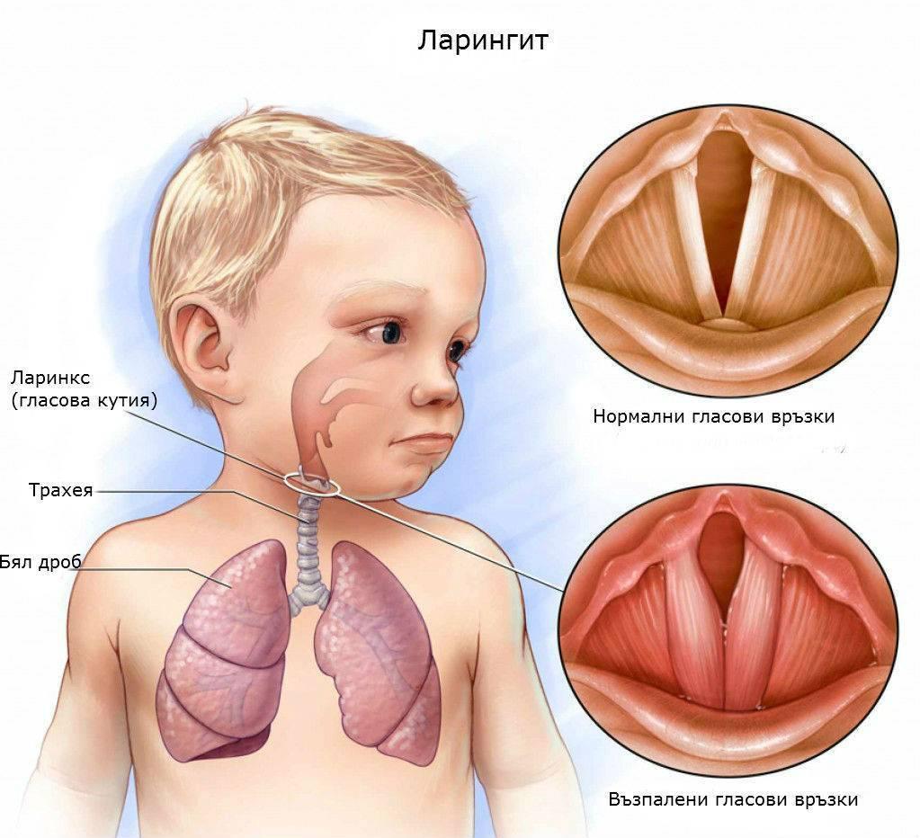 Влажный кашель с хрипами в горле у ребенка