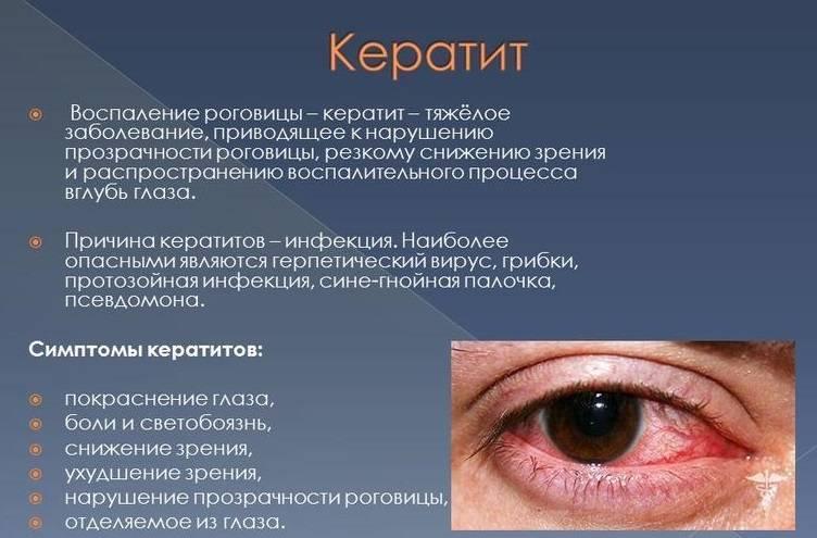 Синдром грефе у младенцев и взрослых: фото, лечение по комаровскому