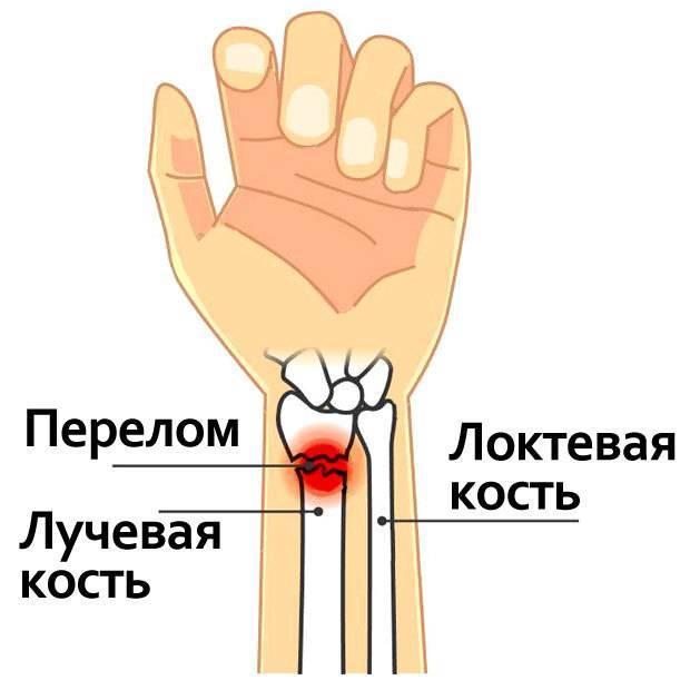 Перелом руки со смещением: лечение, операция, виды