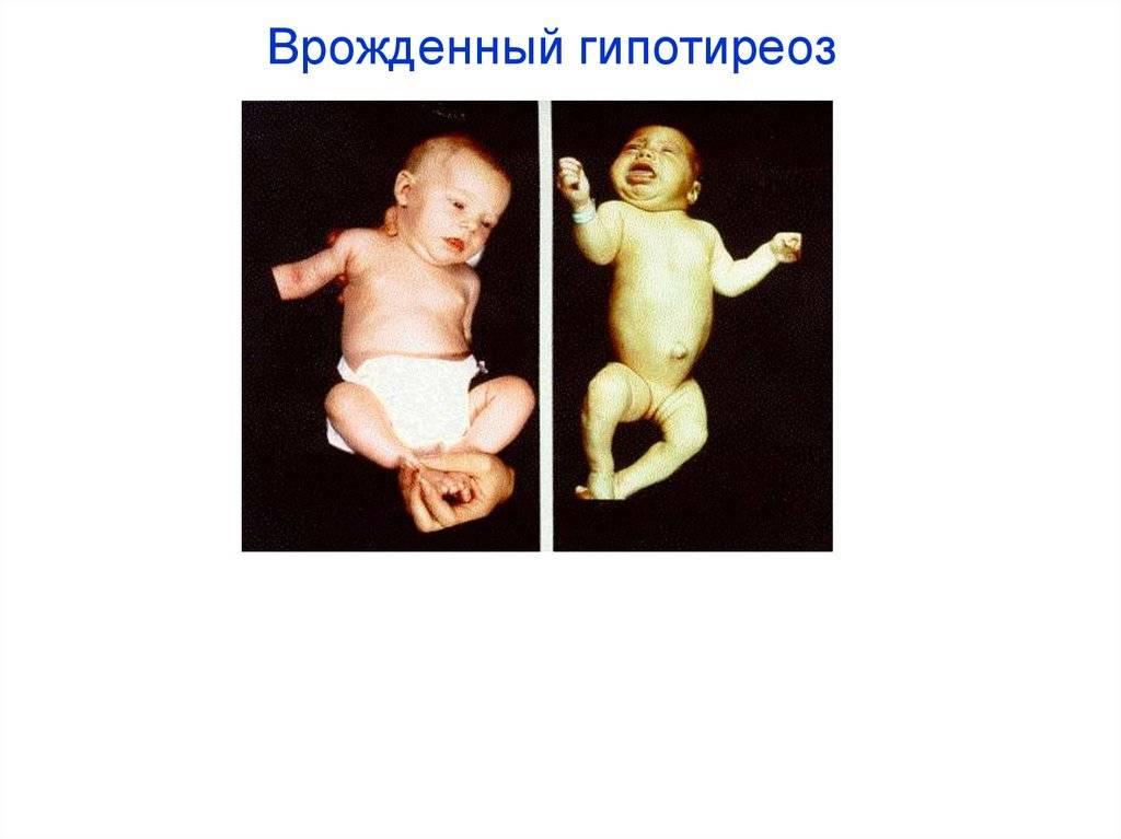Врожденный гипотиреоз у детей: причины, симптомы, лечение