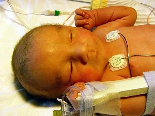 Врожденный гипотиреоз лечение. симптомы и лечение врожденного и приобретенного гипотиреоза у новорожденных и детей от года