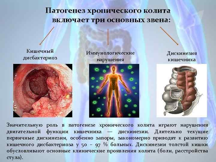 Дискинезия кишечника симптомы и лечение у детей