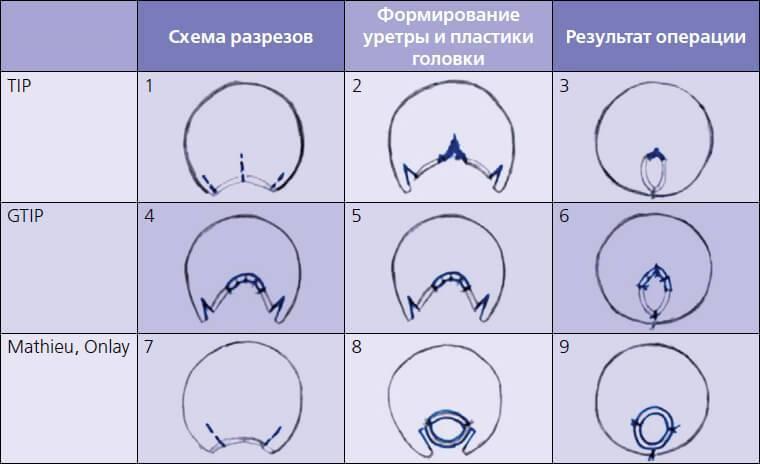 Гипоспадия полового члена у мальчиков - причины, стволовая, венечная и головчатая форма, операция