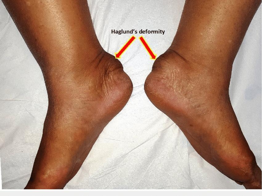 Болезнь хаглунда шинца (остеохондропатия пяточной кости) у детей: как лечить, признаки синдрома