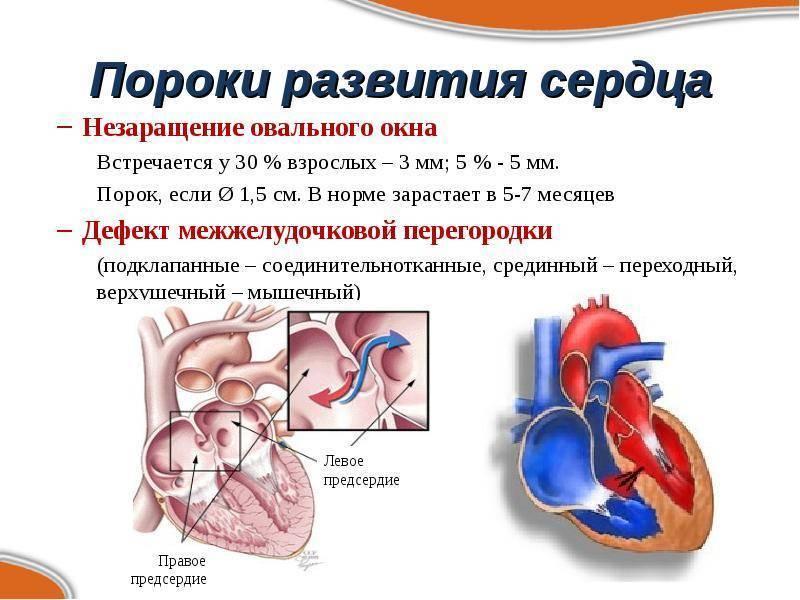 Открытое овальное окно (отверстие) в сердце: причины, закрытие, прогноз