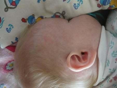 Красные пятна на лице у новорожденного после родов (на затылке, лбу и теле)