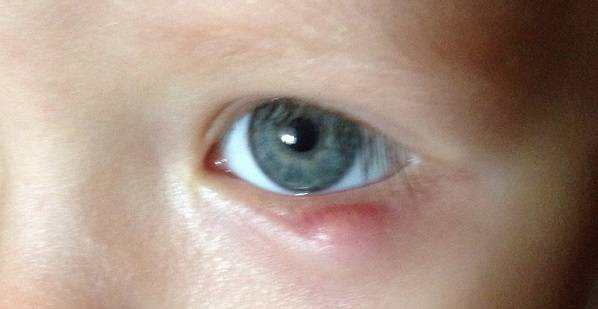 Шишка, бугорок, уплотнение на веке глаза