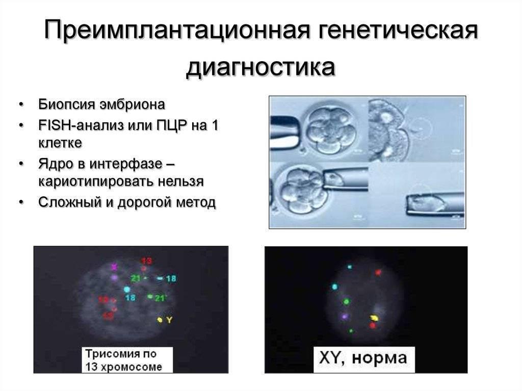 Пгд эмбриона